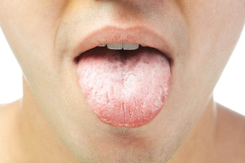 Dealing with a White Furry Tongue? Causes and Easy Fixes